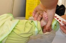 Topuk kanından 'binlerce' genetik hastalık belirlenebilecek