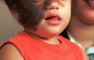 17 çocuk 'Kurt Adam Sendromu'na yakalandı:...