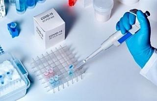 KKTC'DE covıd-19 antikor oranı yüzde 0.2