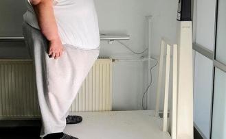 Obezitesi olanlar çareyi 6 yıl sonra hekimde arıyor