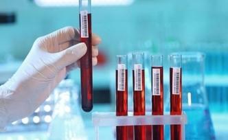 Tek kan testiyle 20 kanser türü tespit edilebiliyor