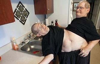 Dünyanın en uzun hayatta kalan yapışık ikizleri 68 yaşında öldü