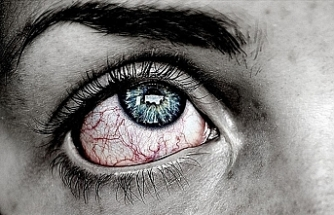 """Uzmanından uyarı! Kırmızı göz """"koronavirüs"""" belirtisi"""
