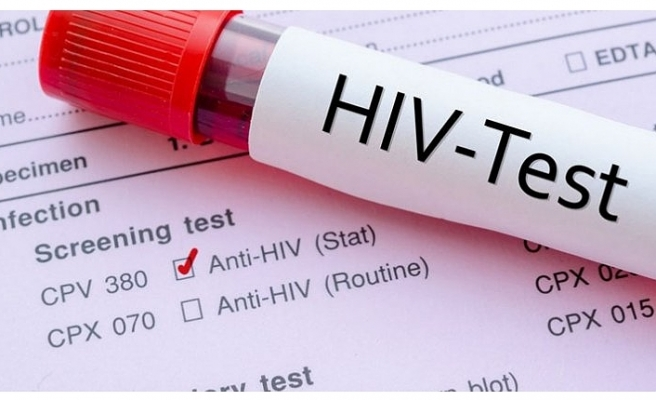 VİETNAM'DA TÜKÜRÜKLE HIV TESTİ UYGULAMASI BAŞLAYACAK