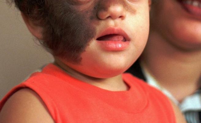 17 çocuk 'Kurt Adam Sendromu'na yakalandı: Mide ilacı yerine saç ilacı verdiler