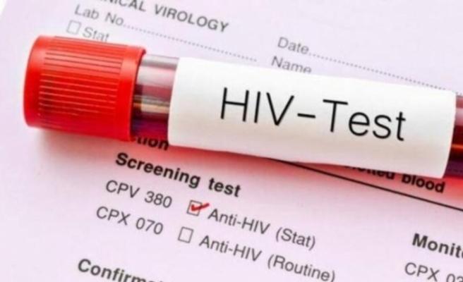 KKTC vatandaşı 75 kişi HIV tanısı ile yaşıyor