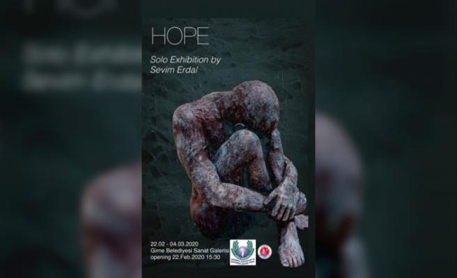 Erdal, ''Hope'' isimli sergisini Girne'de kanser hastaları yararına açacak